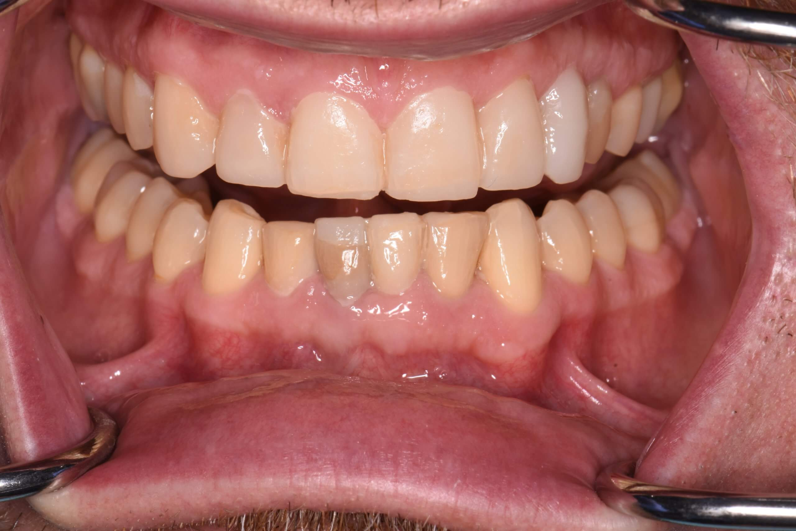 Mock up of proposed final position for teeth